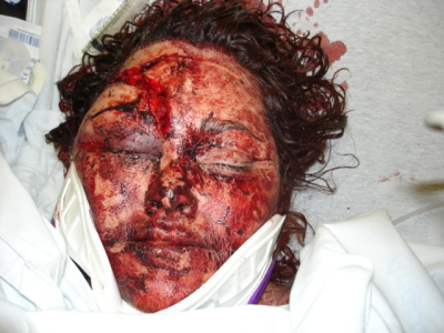 Gruesome Murders http://www.a-motherslove.com/gruesome_crime_scene_photos/albumcomment/sue-white-after-the-attack?i=24&s=
